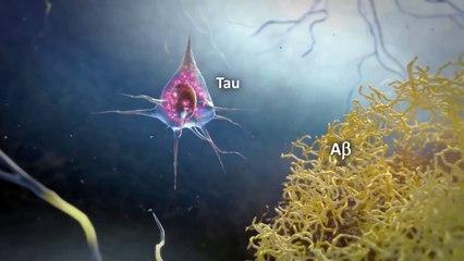 ConsulTV - Prevención y Atención de la Enfermedad Alzheimer y Tuberculosis.