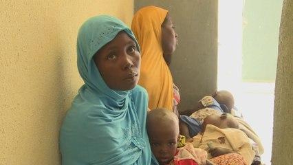 Doctors in Nigeria struggle to cope as acute malnutrition soars