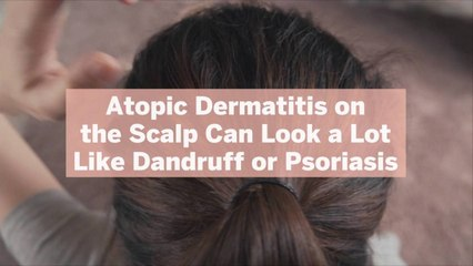 Atopic Dermatitis on the Scalp Can Look a Lot Like Dandruff or Psoriasis—Here's How to Tel