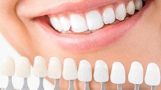 Vos dents sont jaunes ou tachées, voici 2 astuces maison pour les rendre bien blanches
