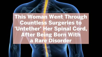 This Woman Went Through Countless Surgeries to 'Untether' Her Spinal Cord, After Being Born With a Rare Disorder