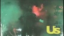 Michael Jackson inédit accident pepsi de 1984