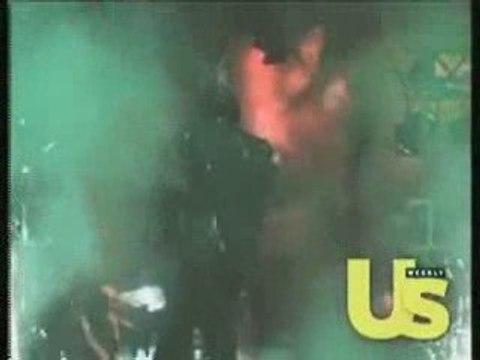 Michael Jackson Hair Burning Pepsi Commercial Accident