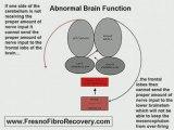 Fresno Fibromyagia Chronic Fatigue Treatment Symptoms