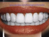 Teeth whitening, how to get white teeth ,natural white teeth