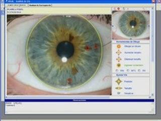 software de iridologia
