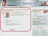 Ask a Dental Implants Dentist about Mini Dental Implants